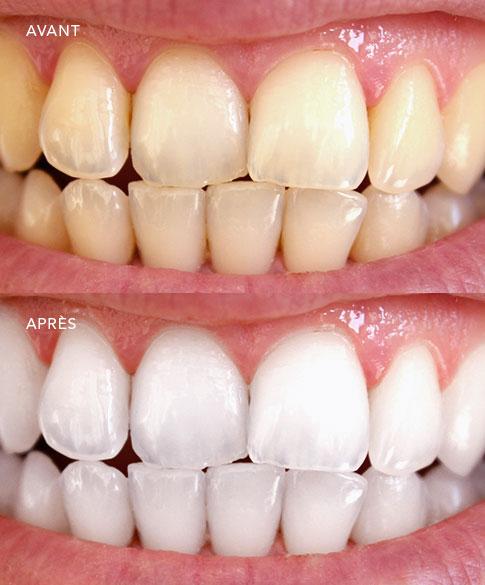 blanchiment des dents dentiste